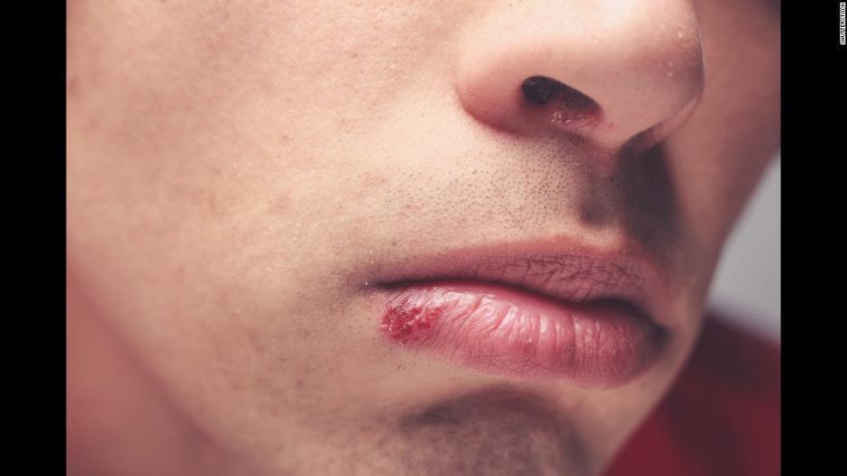 El virus del Herpes es trasmitido por un beso.  (Foto: CNN)
