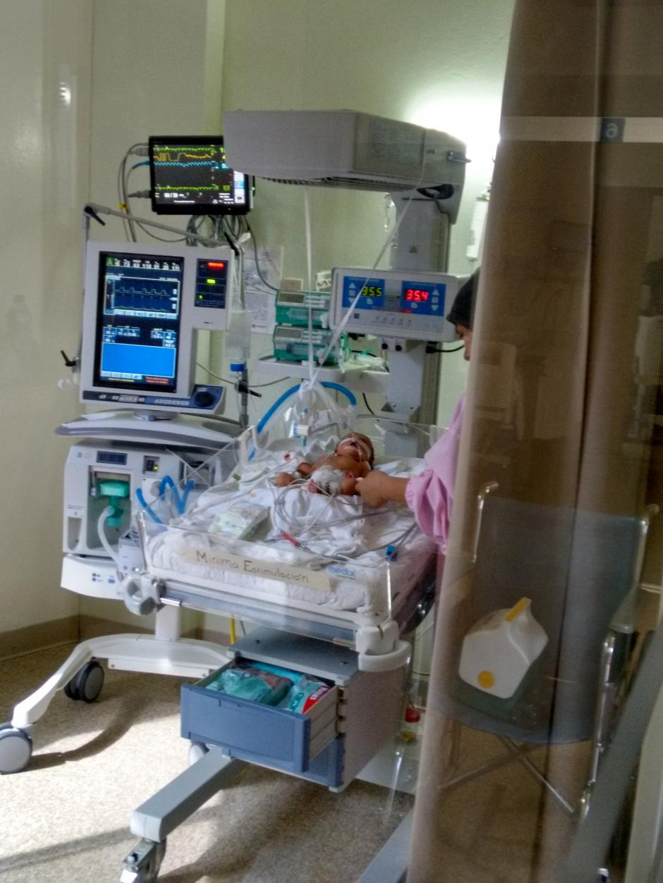 Camilita, como le llama con cariño su familia, tuvo problemas respiratorios al nacer. (Foto: cortesía Jessica Medina)