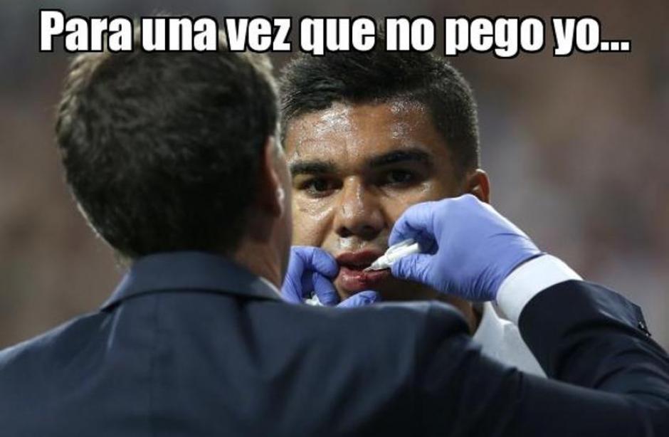 """Casemiro recibió un """"golpecito"""". (Foto: Twitter)"""
