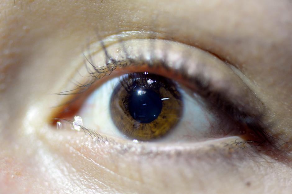 La función de la córnea es proteger al ojo para que no entre polvo, aire ni agua. (Foto: Alejandro Balán/Soy502)