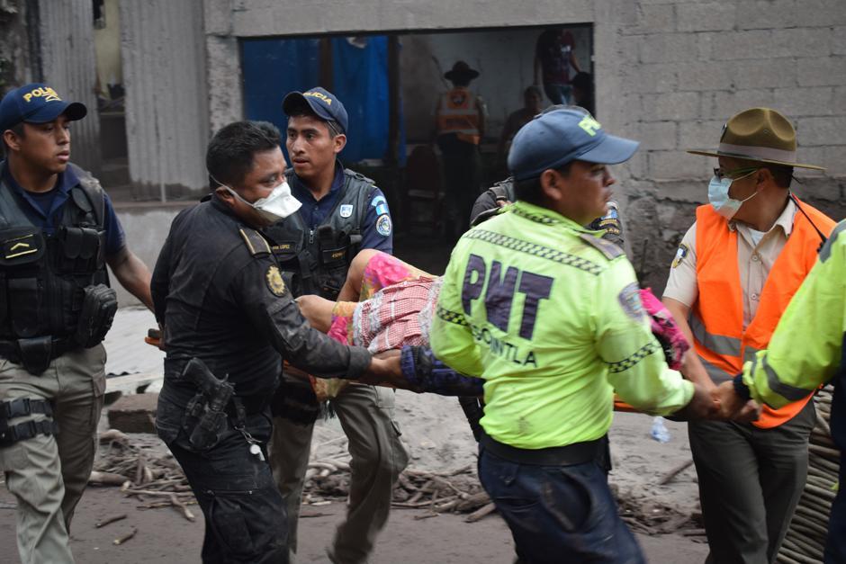 Muchos sobrevivientes presentas cuadros críticos de quemaduras profundas. (Foto: Manuel Cobar/Soy502)
