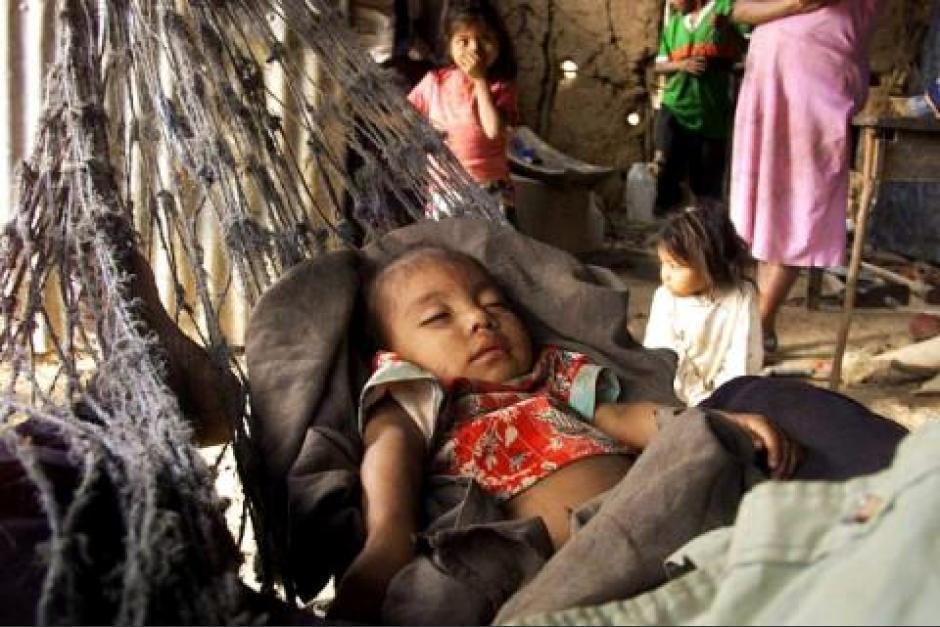 Sesan realiza búsqueda de niños con desnutrición en 78 municipios del país. (Foto: Archivo/Soy502)