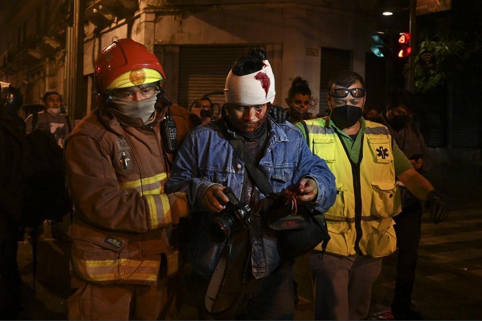Carlos Sebastián, fotóperiodista resultó herido tras una agresión de la PNC durante las manifestaciones del sábado. (Foto: Johan Ordóñez/AFF)