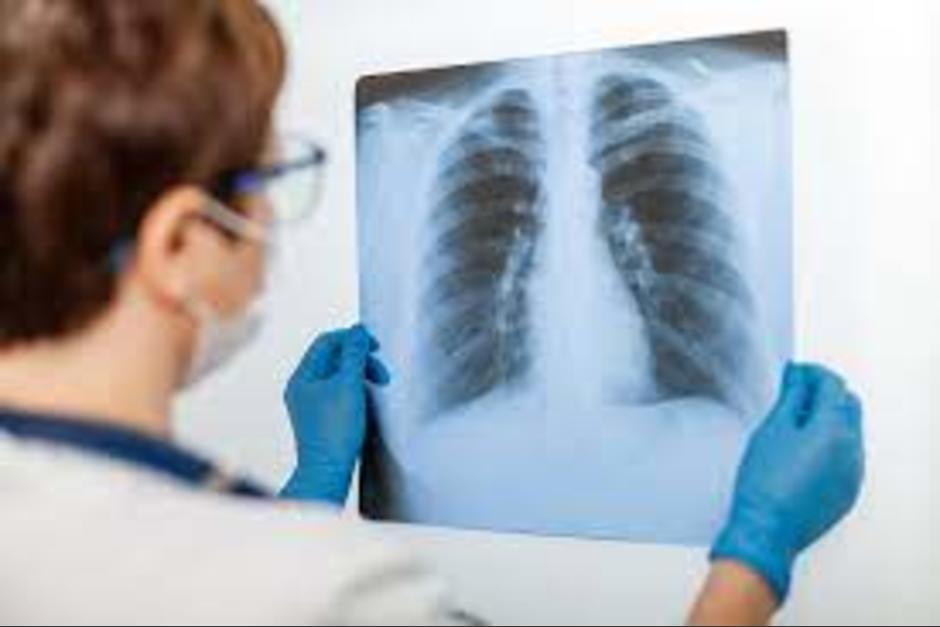 Los pulmones de los fallecidos por Covid-19 fueron más afectados, según estudio. (Foto: 65YMás)