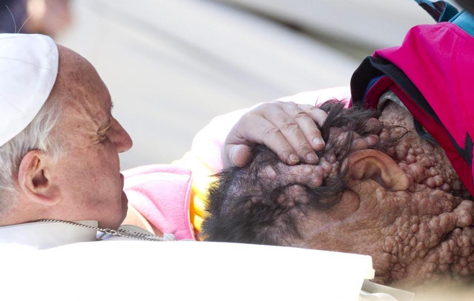 El pasado 20 de noviembre el papa acogió a un hombre desfigurado por una enfermedad, dando una lección de amor. (Foto: Claudio Peri/EFE)