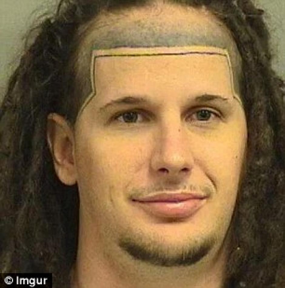 Él decidió ocultar su prominente frente con un tatuaje. (Foto: Daily Mail)