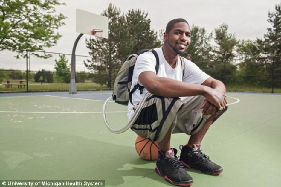 Stan Larkin sobrevivió durante 17 meses sin corazón gracias a esta herramienta en la mochila. (Foto: umich.com)