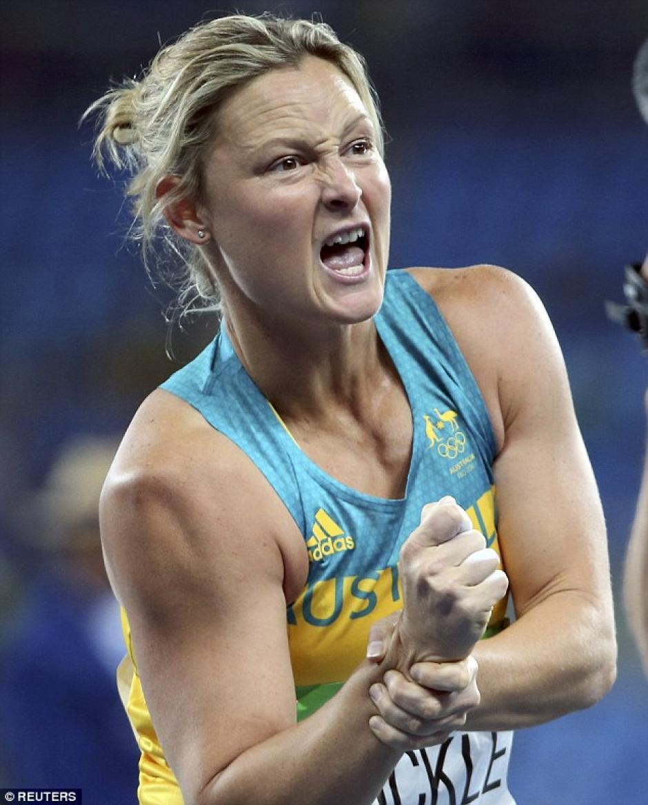 Kim Mickle se dislocó el brazo tras un lanzamiento de jabalina. (Foto: dailymail.co.uk)