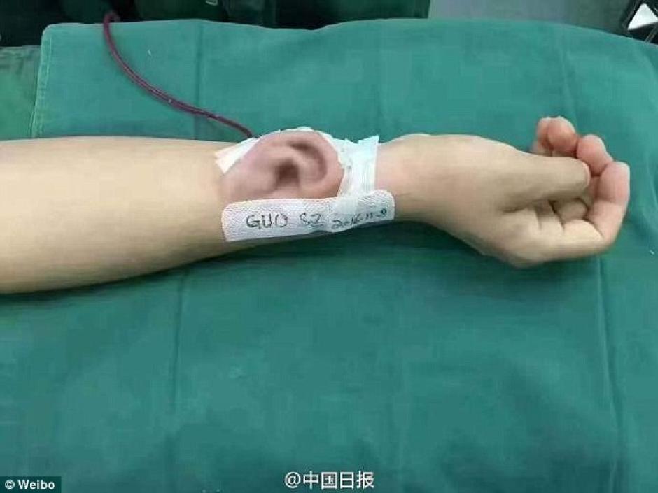 Un médico en China tomó el cartílago de las costillas del paciente para construir una nueva oreja. (Foto: DailyMail)
