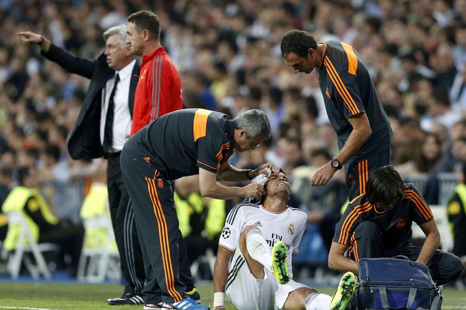 Pepe es atendido luego de recibir un cabezazo.