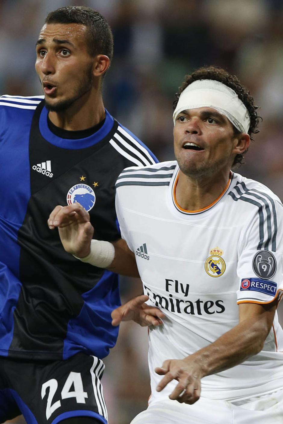 Pepe regresó al terreno de juego con una venda, luego de un encontronazo.