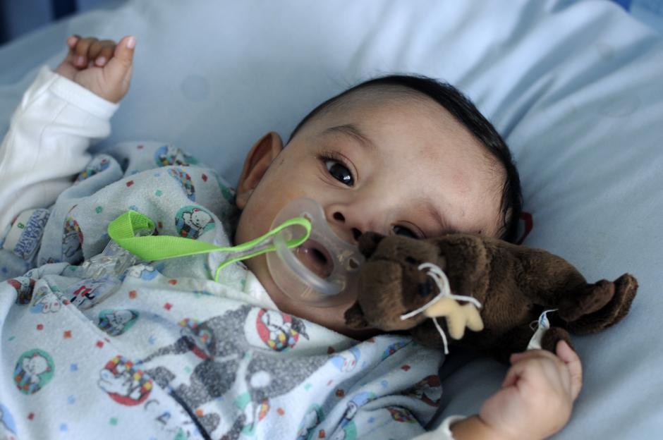 Diego es un bebé de 6 meses que fue sometido a una operación a corazón abierto y se encuentra ya en una recuperación exitosa. (Foto: Esteban Biba/Soy502)