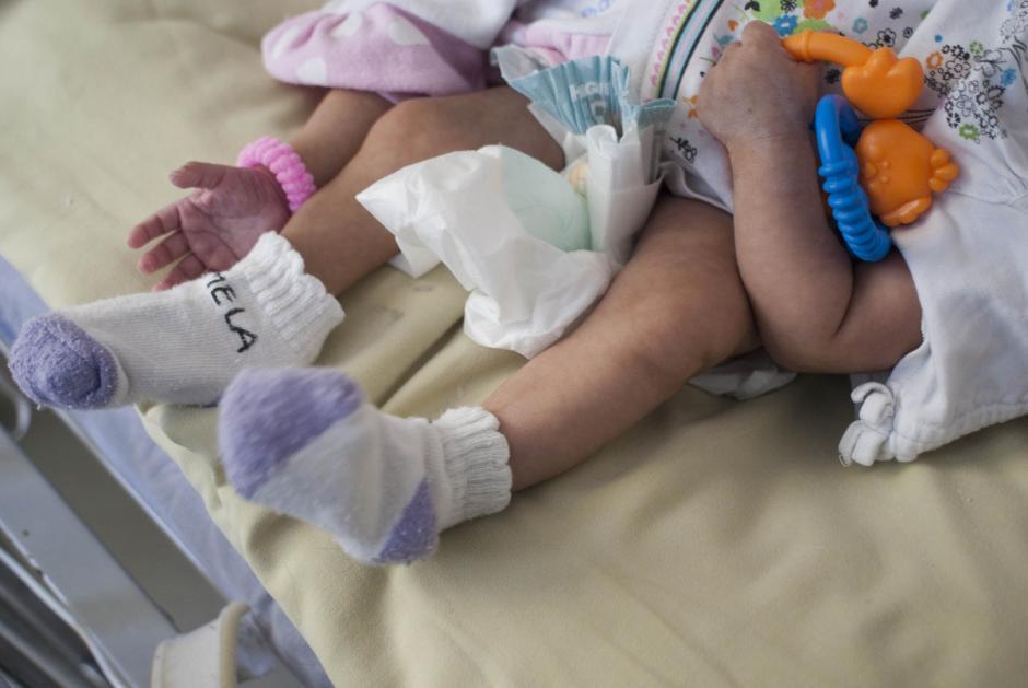 Las siamesas Ana Rosa y Rosa Linda está unidas por la cadera y deben ser operadas para poder separarlas. El procedimiento se ha planificado para mayo y participarán al menos 20 médicos. (Foto: Jesús Alfonso/Soy502)