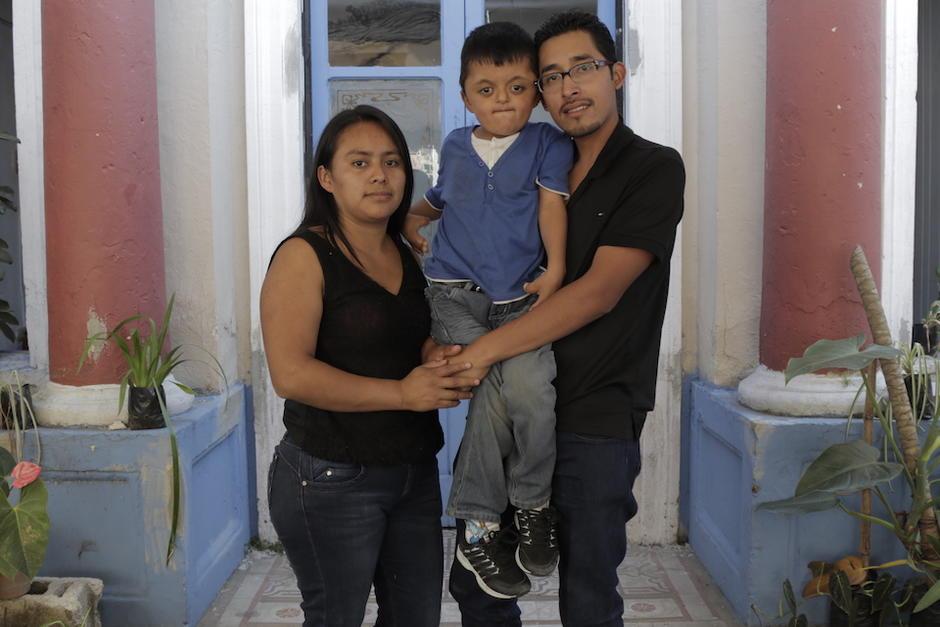 Saúl Martínez es un pequeño de seis años con Síndrome de Apert con creaneosinostosis. (Foto: Alejandro Balán/Soy502)