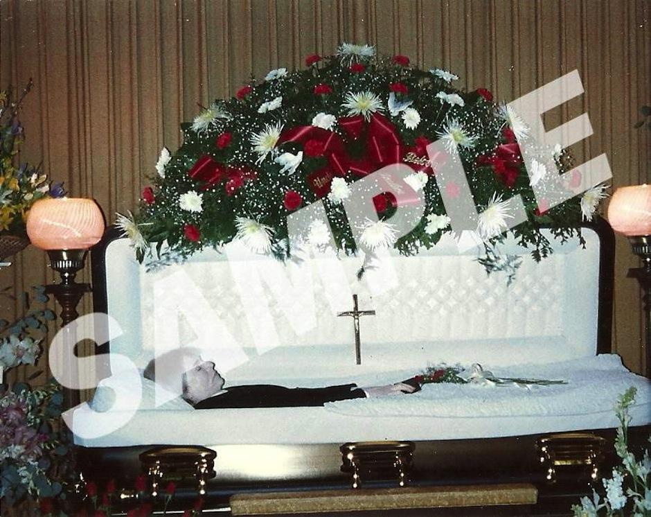 Andy Warhol murió en 1987 durante una cirugía de vesícula biliar. (Foto: Ranker)