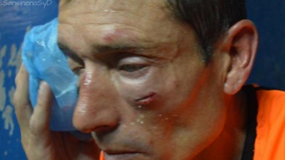 El rostro del árbitro, Claudio Elichiri, tras la golpiza recibida el fin de semana. (Foto: Twitter)