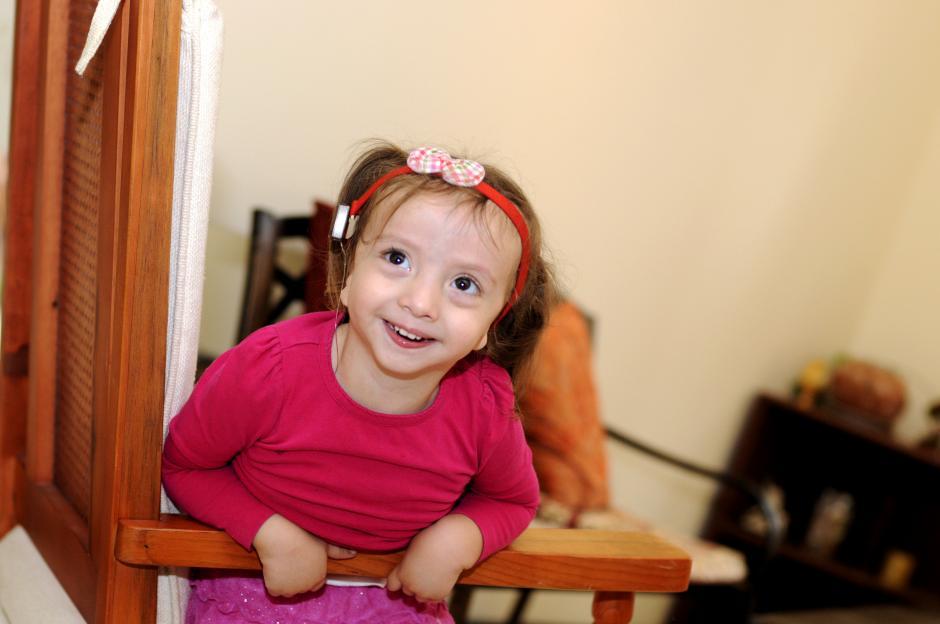 Belén nació sin orejas pero gracias a una operación puede llegar a escuchar.