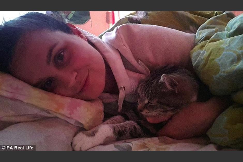 Ella es Heather Reed, una mujer diagnosticada con el síndrome de la Bella Durmiente. (PA Real Life)