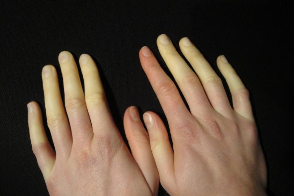 Cambio de color en los dedos. (Foto: Genial Gurú/Commons Wikipedia)