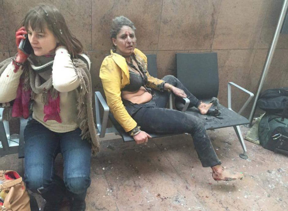 Así se veían dos sobrevivientes en el aeropuerto de Bruselas. (Foto: Conflict News/Twitter)