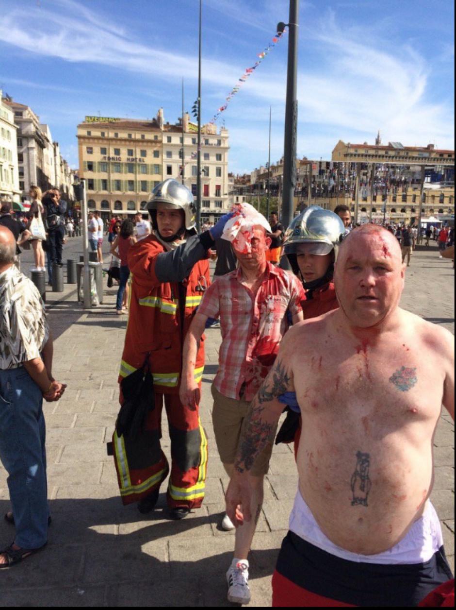 Heridas cortopunzantes y reporte de fuertes golpes fue el saldo de la trifulca. (Foto: Twitter)