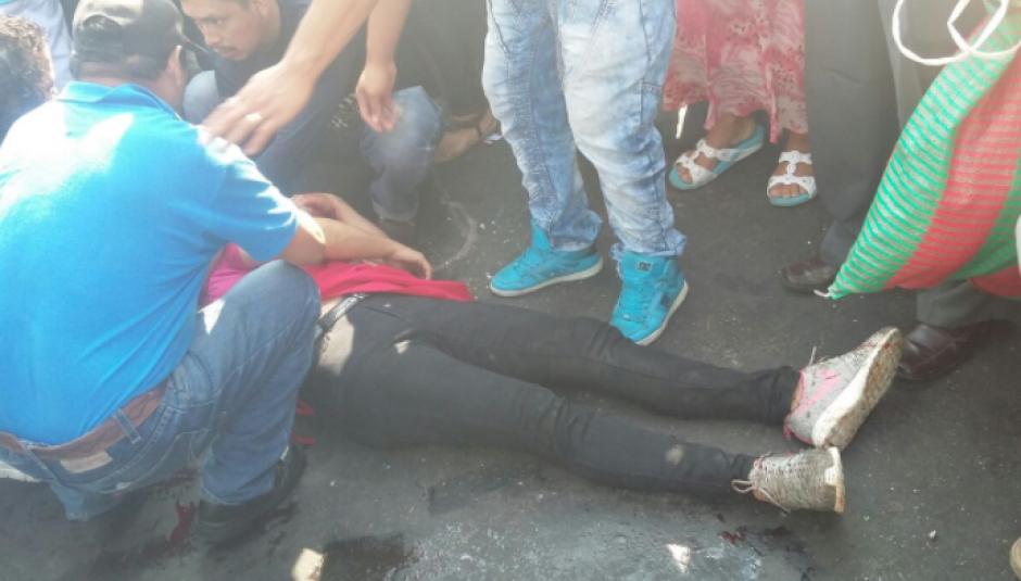 Los heridos presentaron heridas de proyectil incrustado.  (Foto: Dalia Santos)