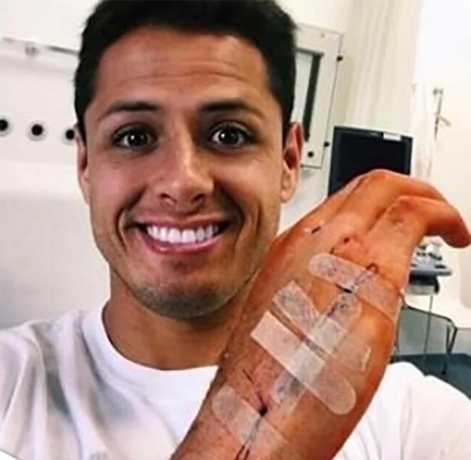 """Así luce la mano del """"Chicharito"""". (Foto: Javier """"Chicharito"""" Hernández/Instagram)"""