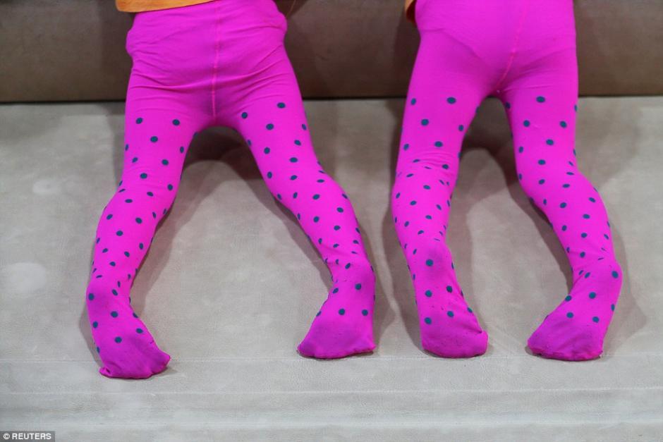Hermanas gemelas se aferran a una barra de equilibrio. (Foto: dailymail.co.uk)