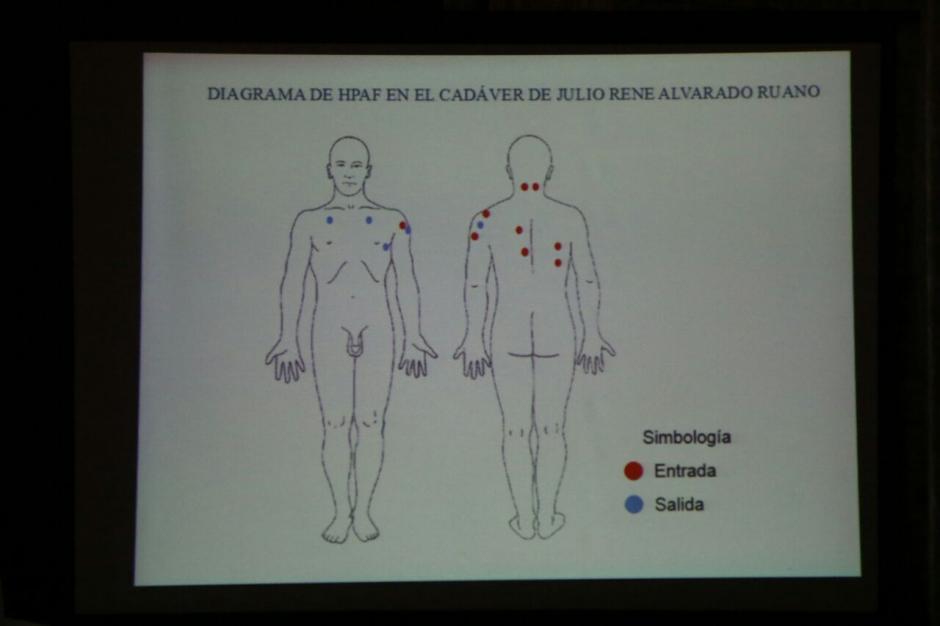 Estas son las heridas que presentaba el niño de 13 años. (Foto: Alejandro Balán/Soy502)