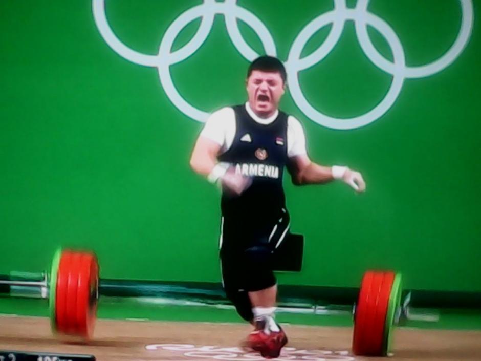 El peso venció el brazo del armenio y le provocó la lesión. (Foto: Twitter))