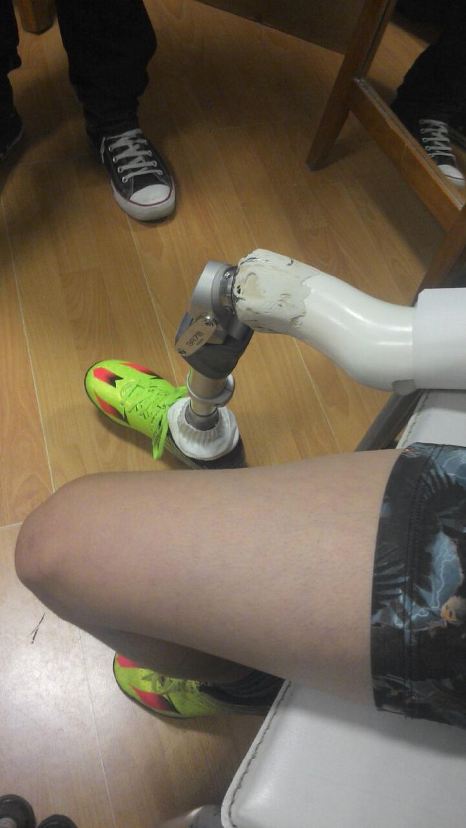 Santiago ya tiene su prótesis y con terapia y paciencia volverá a caminar. (Foto: Twitter)