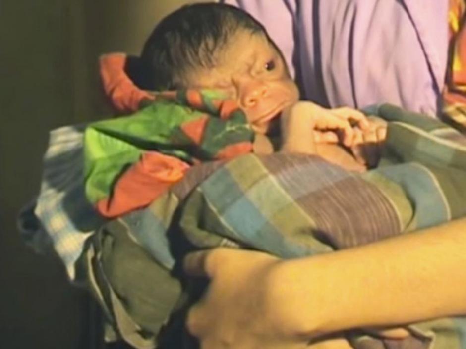 La condición de este bebé afecta al organismo y hace que envejezca ocho veces más rápido. (Foto: Captura de video)