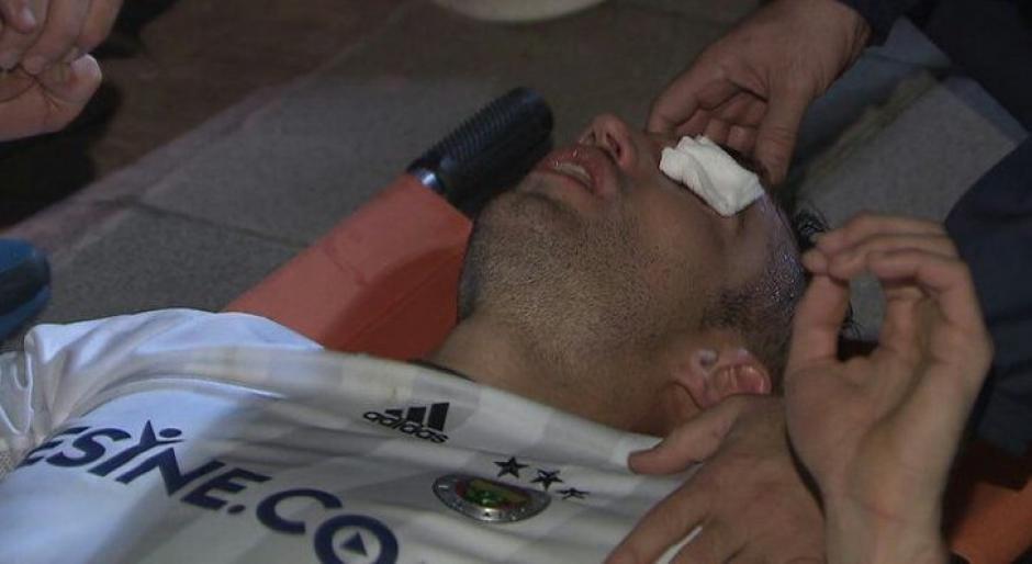 Van Persie recibió un fuerte codazo en el ojo izquierdo. (Foto: Agencias)