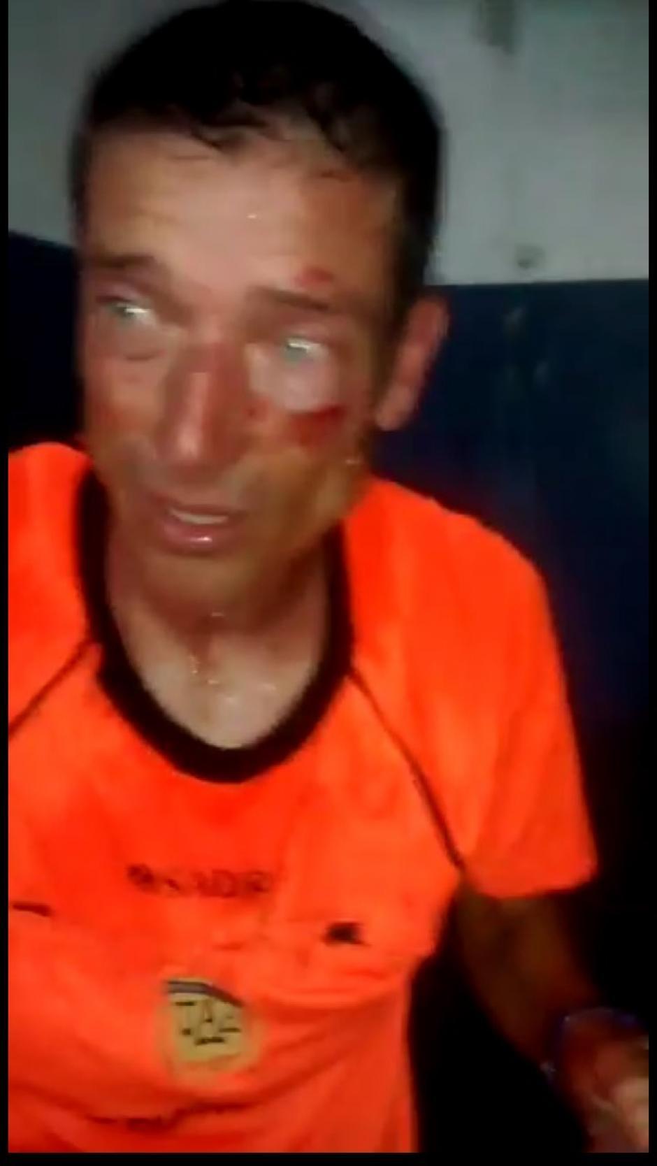así quedó el rostro de Claudio Elichiri, quien recibió una golpiza. (Foto: Captura de video)