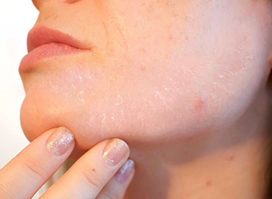 Descamación de la piel. (Foto: Genial Gurú/Pixabay)