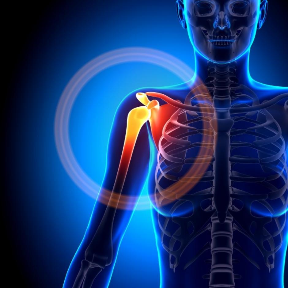 Desplazamiento de la articulación del hombro. (Foto: Genial Gurú/depositphotos)