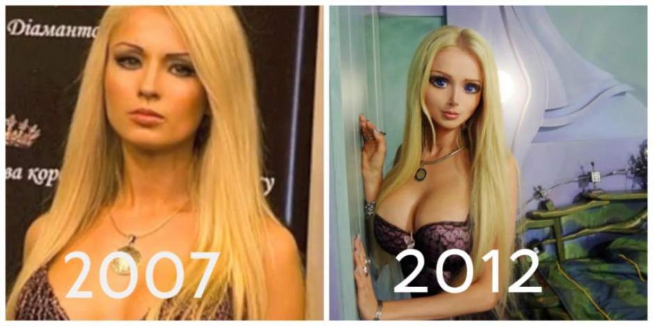 En cinco años logró un cambio sorprendente. (Foto: elheraldo.hn)