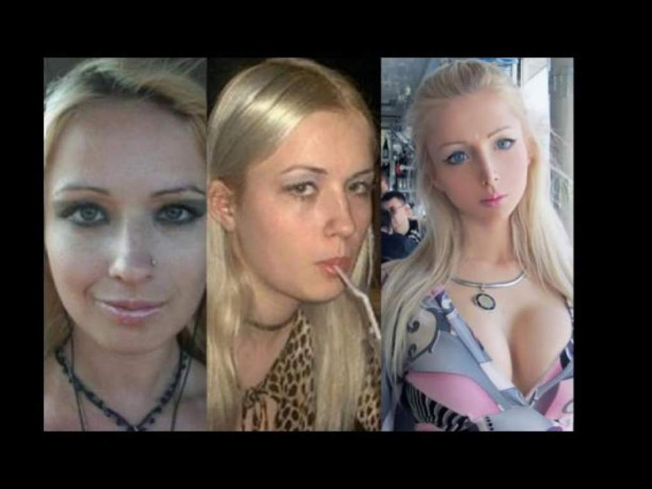 La joven europea aceptó que ha abusado de cirugías plásticas para modificar su apariencia. (Foto. elheraldo.hn)