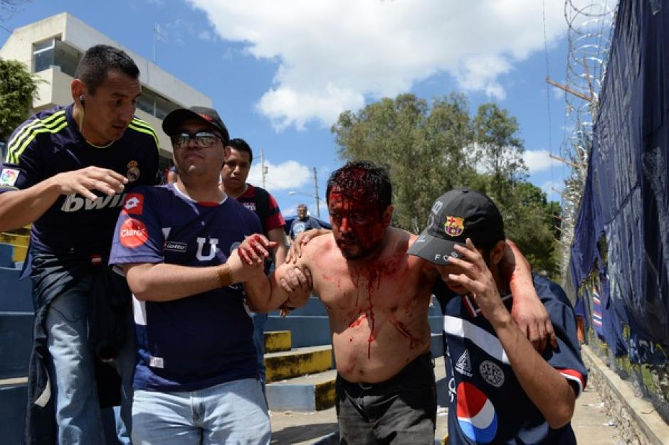 Un seguidor de la Usac que se enfrentó con aficionados de Comunicaciones resultó con una herida en la cabeza. (Foto: Nuestro Diario)