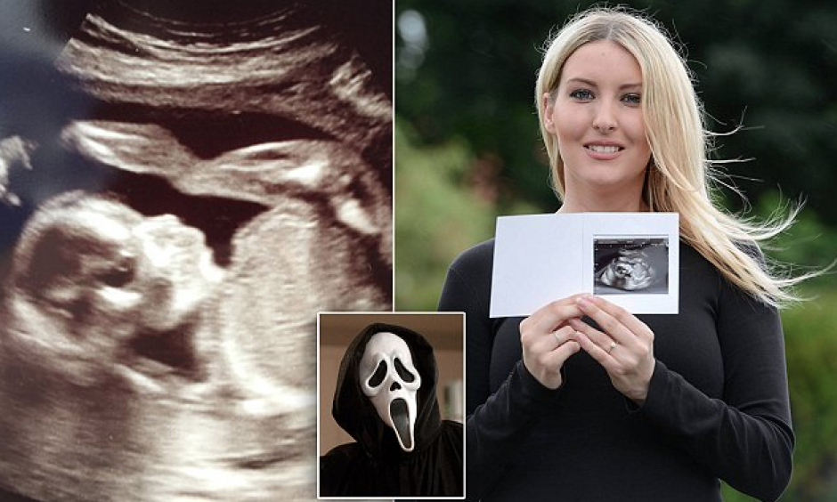 La mujer asegura que se pueden ver los ojos, la nariz y la alargada boca de la máscara de Scream. (Foto: The Sun)