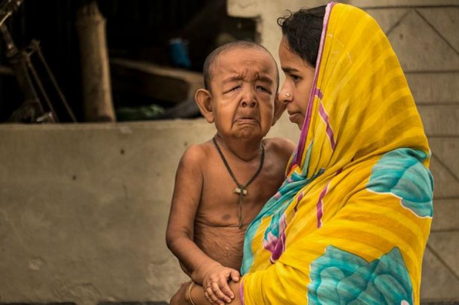 Su madre Tripti Khatun dio a luz al pequeño cuando tenía 14 años. (Foto: elciudadano)