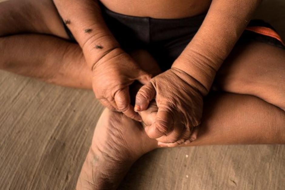 Los médicos dicen que podría vivir hasta los 15 años. (Foto: elciudadano)