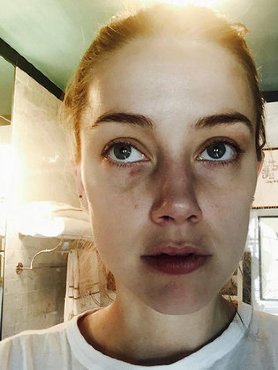 Amber Heard mostró las heridas que supuestamente le causó Johnny Depp. (Foto: eonline.com)
