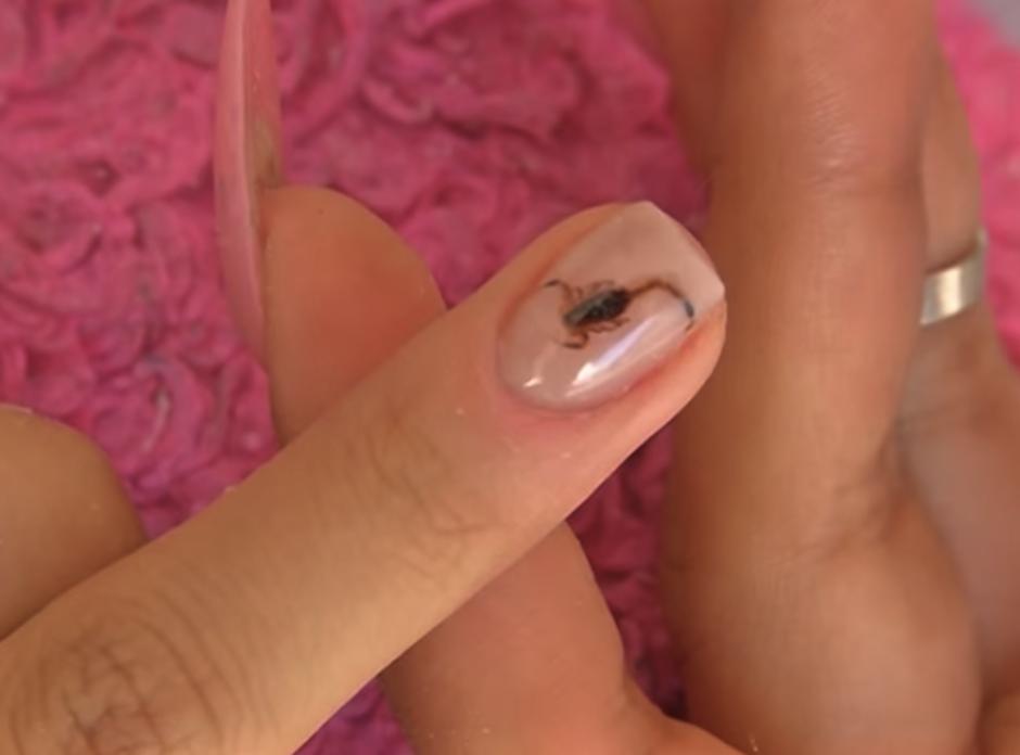 Así luce el bebé escorpión dentro de la uña ¿te lo harías? (Foto: youtube)