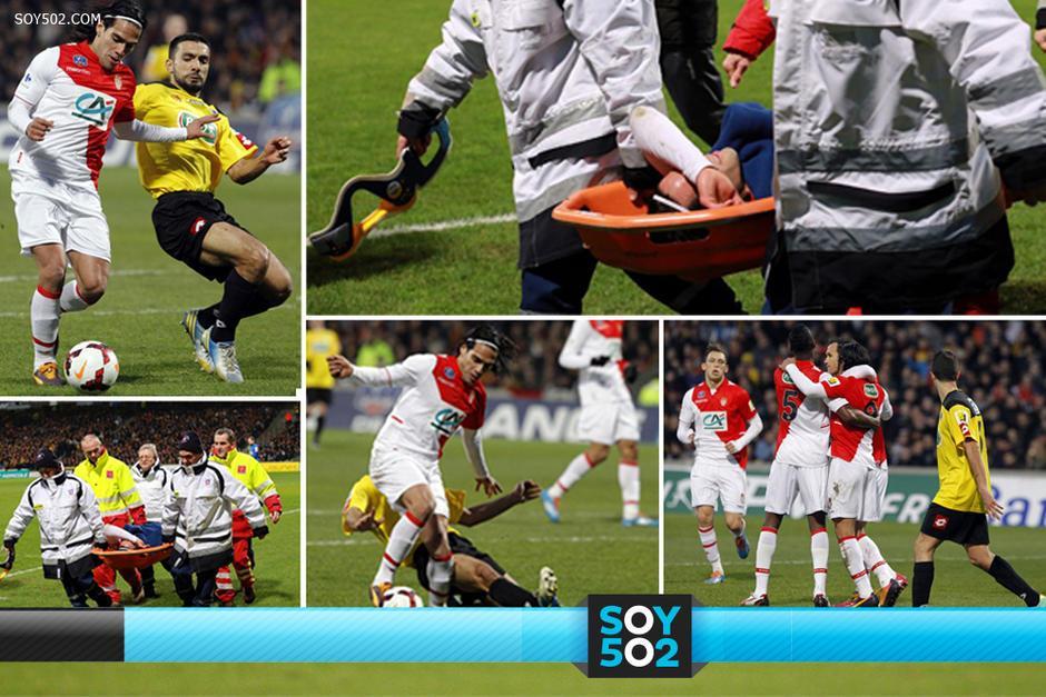 Falcao se lesionó en un juego de copa y sus esperanzas de participar en el Mundial con Colombia son practicamente nulas
