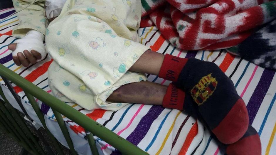 Los hermanos de la víctima han sufrido abusos y quemaduras. (Foto: Hugo Barrios/Nuestro Diario)