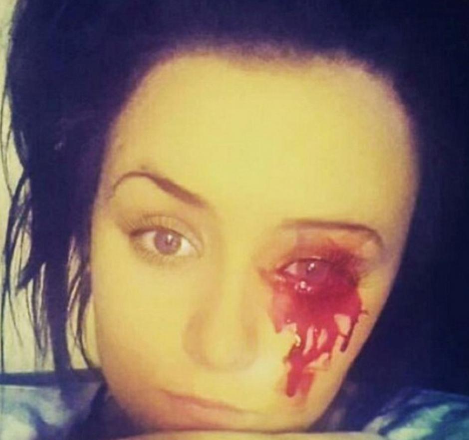 Adolescente llora sangre y los médicos no tienen explicación. (Foto: 24 horas