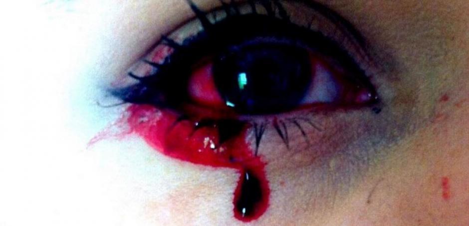 Marnie Harvie sangra de los ojos, nariz, oídos  y las uñas. (Foto: DailyMail)