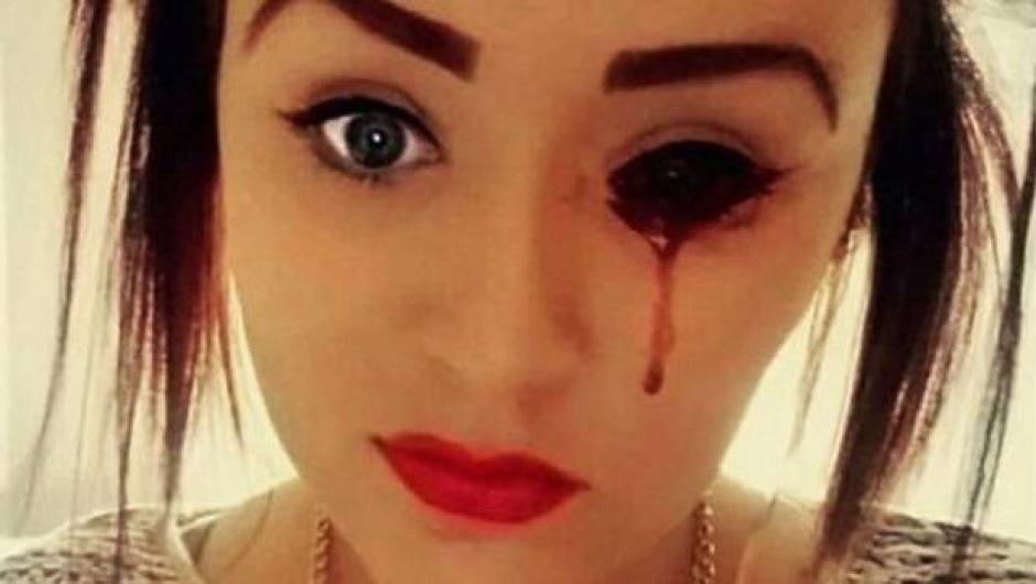 Las hemorragias de Marnie Harvie tienen en jaque a los médicos. (Foto: DailyMail)