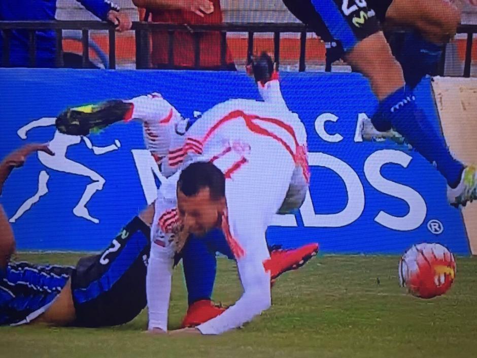 Ubilla chocó con un rival y sufrió la fractura en su tibia y peroné. (Foto: radioagricultura.cl)